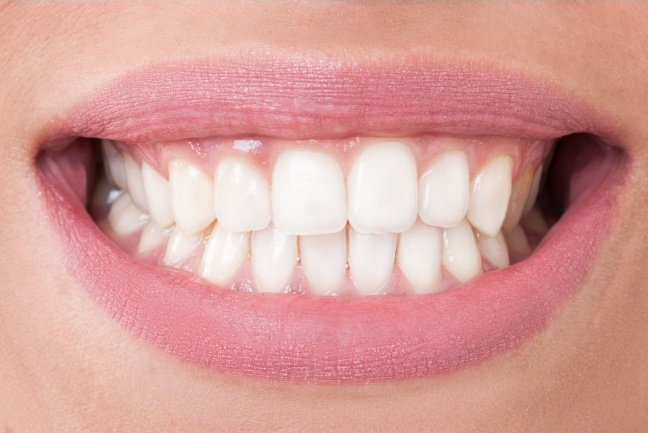 Healthy smile after gum disease treatment