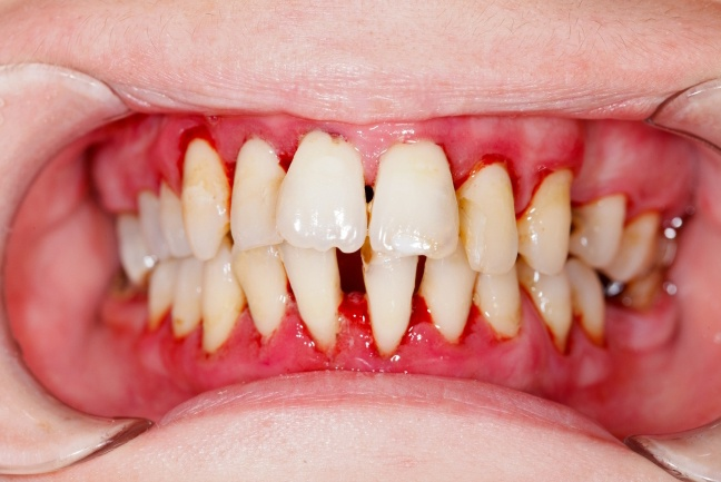 Severe decay and gum tissue recession